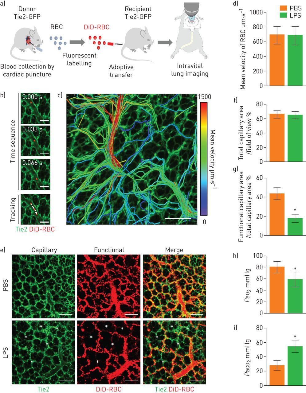 Neutrophils disturb pulmonary microcirculation in sepsis