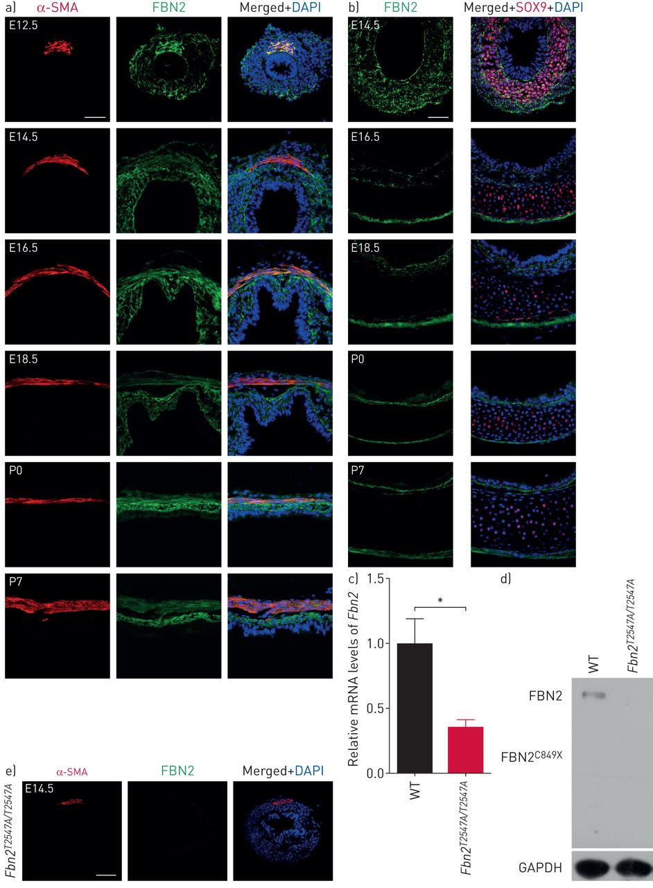 Fibrillin-2 is a key mediator of smooth muscle extracellular