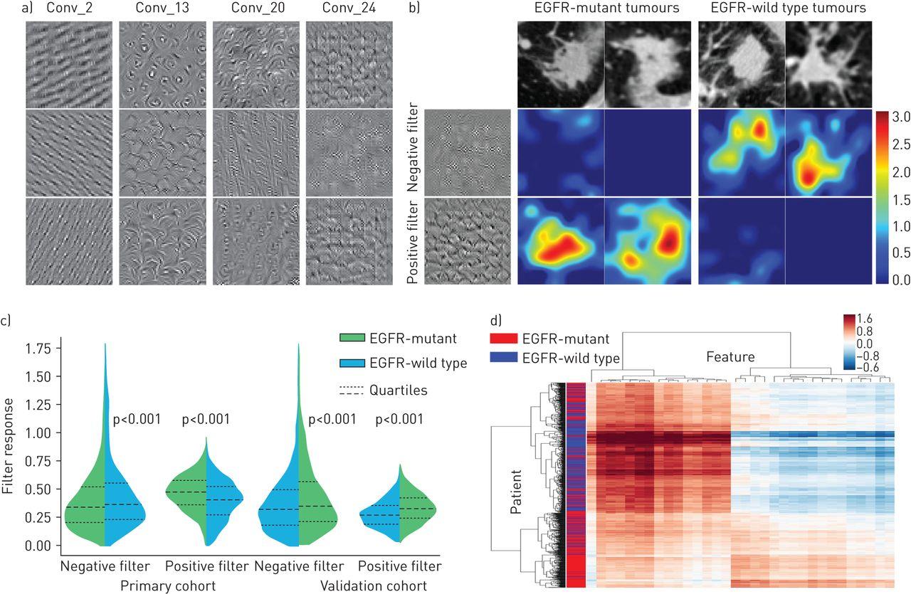 Predicting EGFR mutation status in lung adenocarcinoma on