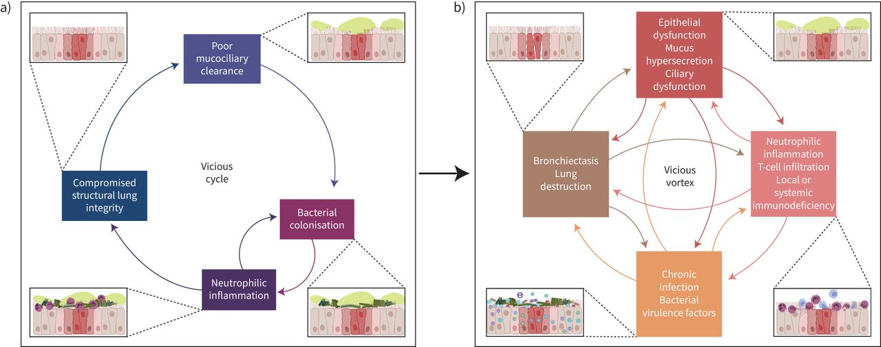Neutrophil dysfunction in bronchiectasis: an emerging role for ...