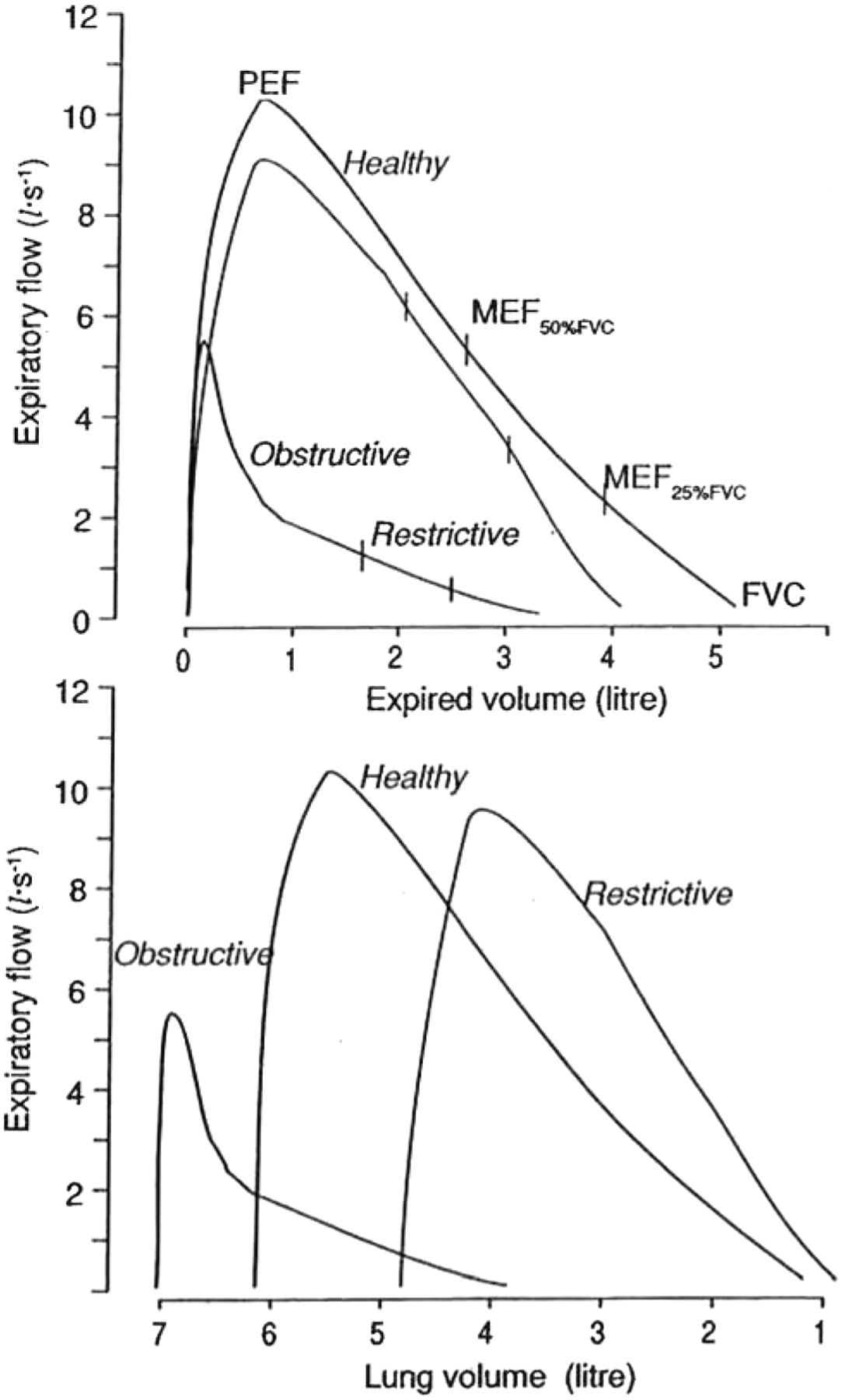 Lung volumes and forced ventilatory flows | European