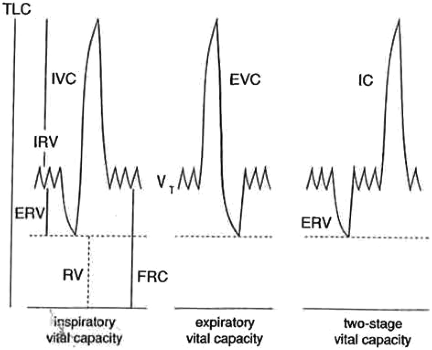 Lung volumes and forced ventilatory flows | European Respiratory Society