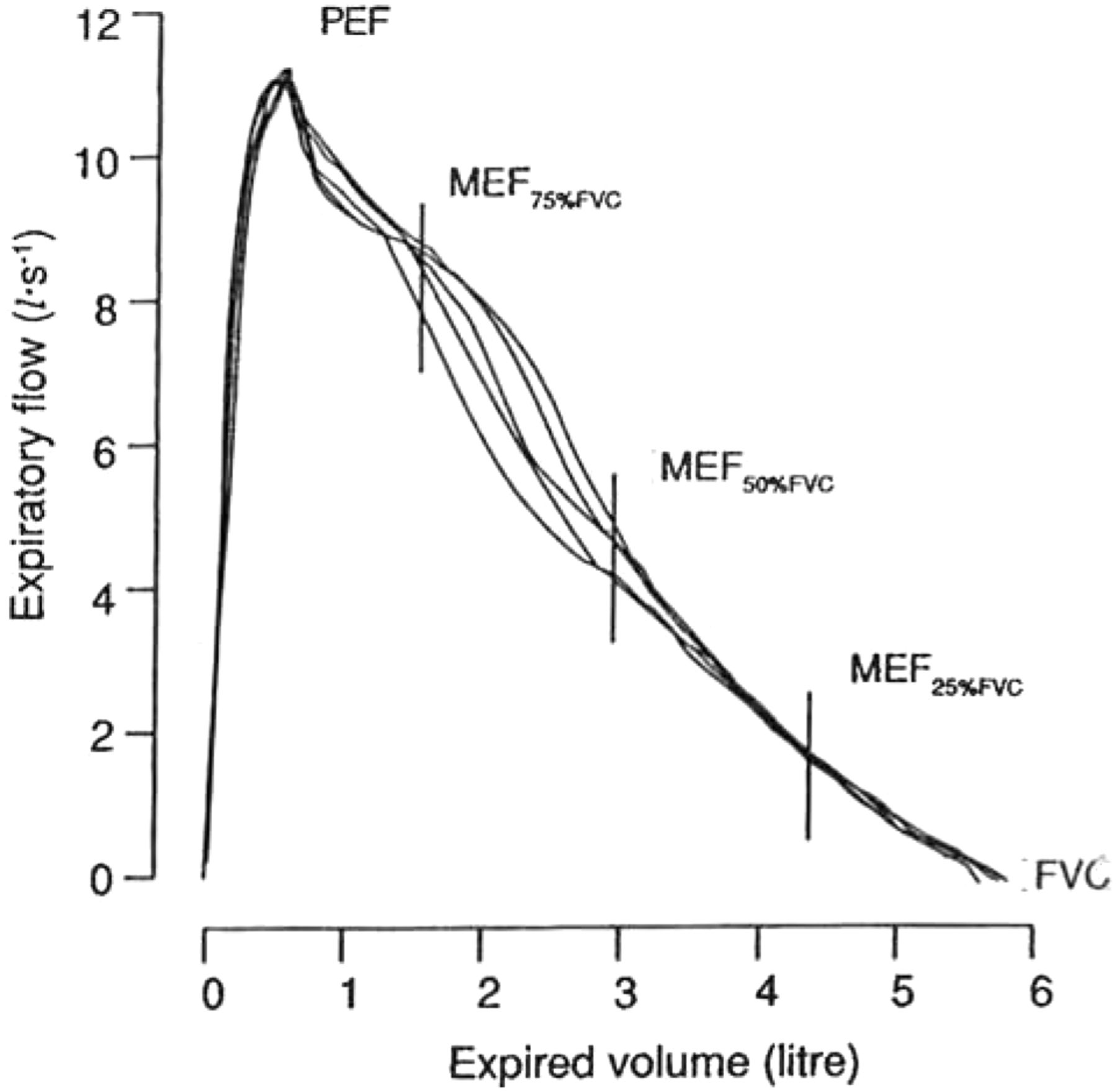 Lung Volumes And Forced Ventilatory Flows European Respiratory Society