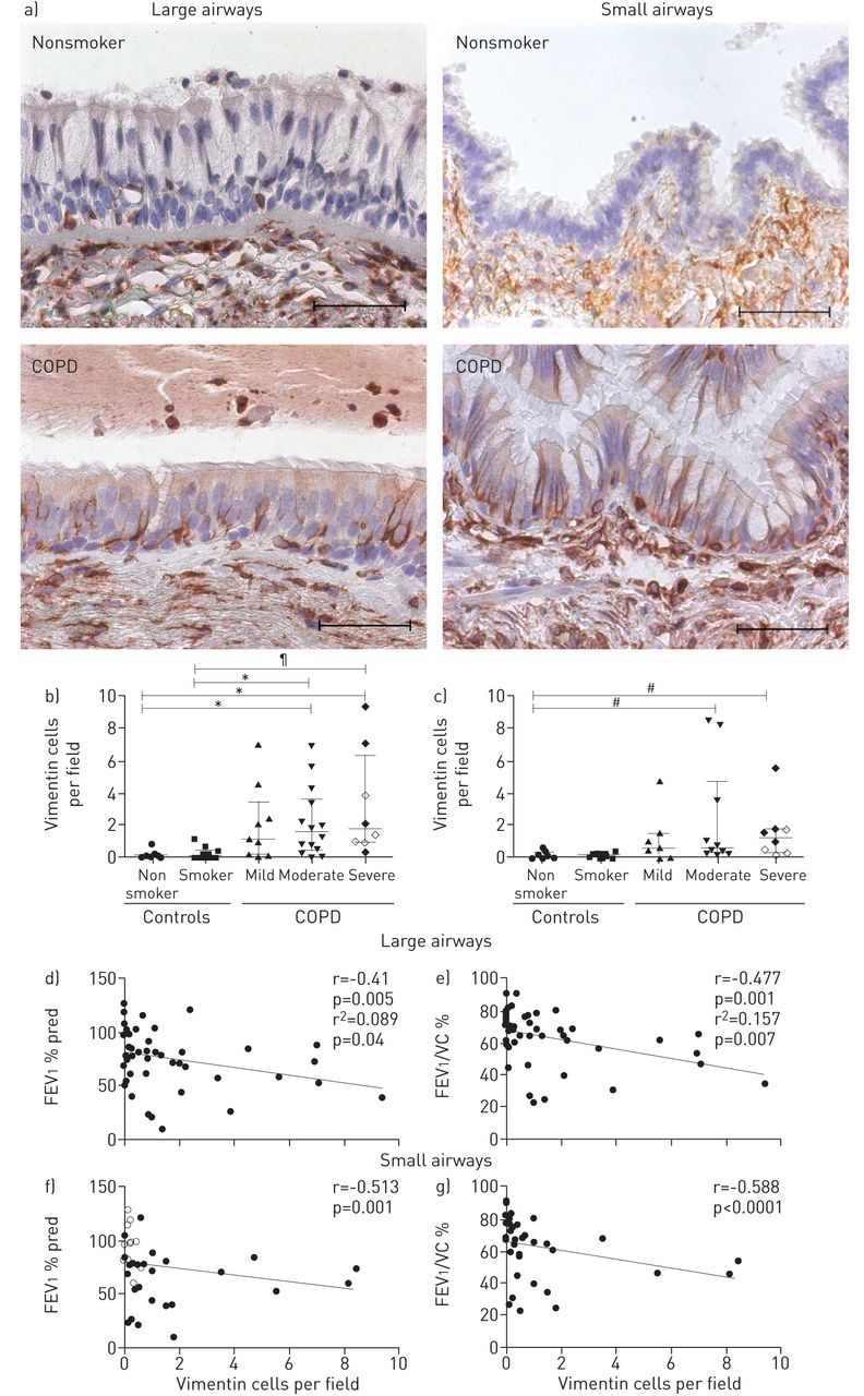 Imprinting of the COPD airway epithelium for dedifferentiation and