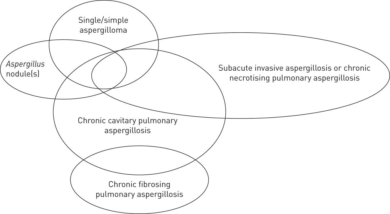 Chronic Pulmonary Aspergillosis Rationale And Clinical Guidelines